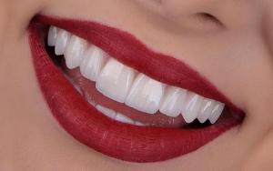 لمینت دندان-دکتر فرشید محرابی